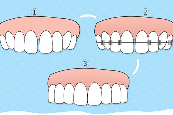 门牙有缝怎么治 门牙有缝怎么办