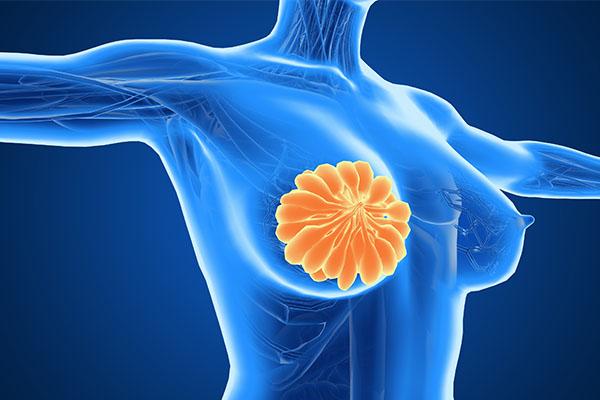 乳腺炎2.jpg